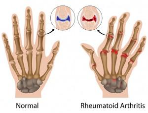 reuma blog